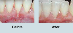 Gingival Graft Before and After