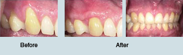 Gum Graft Before and After